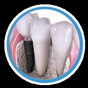 implante dentário canoas