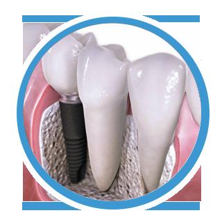 protese dentária dentista canoas
