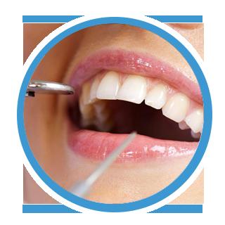 tratamento da gengiva dentista canoas