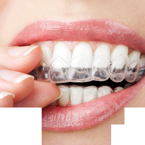 aparelhos dentário dentista canoas
