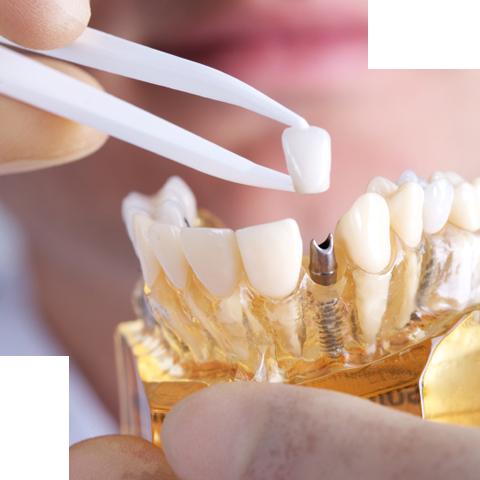 implante dentário dentista canoas